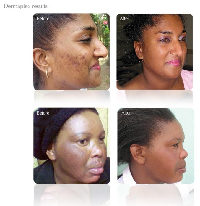 dermapleax results